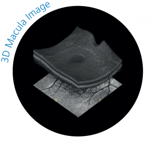 3D Macula Image