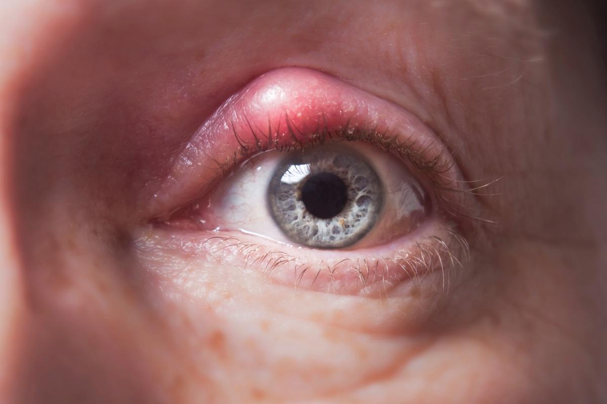 Blepharitis - Family Eyecare