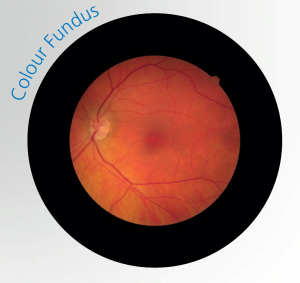 Colour Fundus